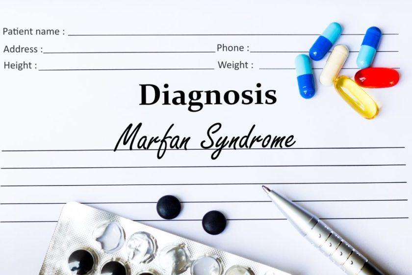 Marfan Syndrom. Bildquelle: Von Marcelo Ricardo Daros / Shutterstock.com